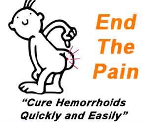 haemorrhoids-4